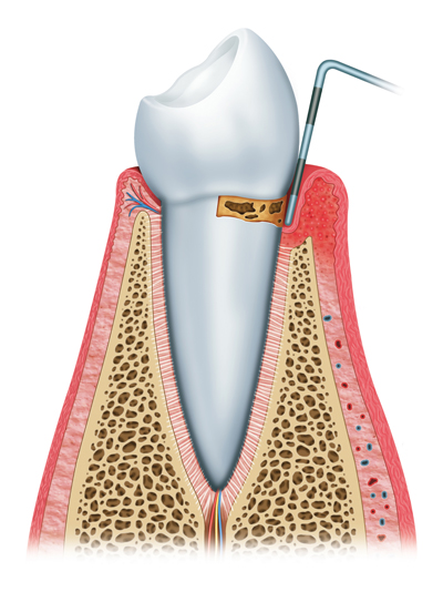 Stages of Gum Disease Murfressboro, TN