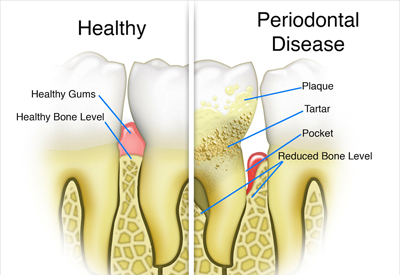Gum Disease and Tooth and Bone Loss Murfressboro, TN